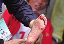 16岁女孩赤脚跑万米夺冠 双脚血泡观众洒泪(图)