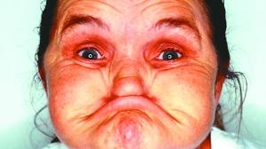 世上最丑的女人 ted