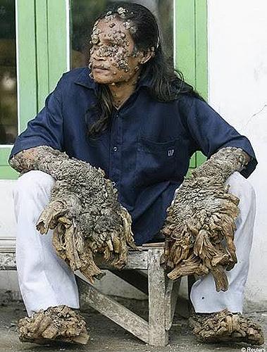 全球七大最怪异皮肤病