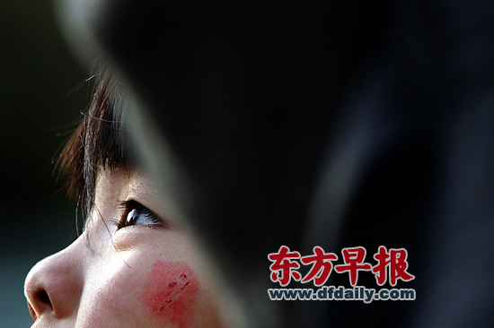 昨日,复旦大学附属儿科医院,7岁女童若若(化名)左边脸颊还留