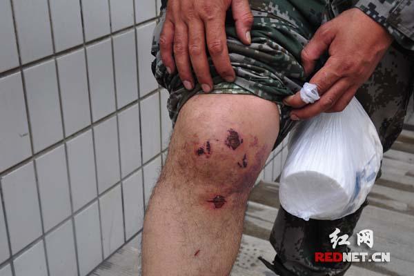 北京某高官儿子车祸_多里昆骑行抵达北京 途中遭车祸摔伤腿脚(组图)