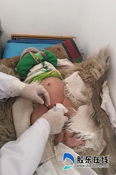 在当地为一名12月大的小患儿导尿