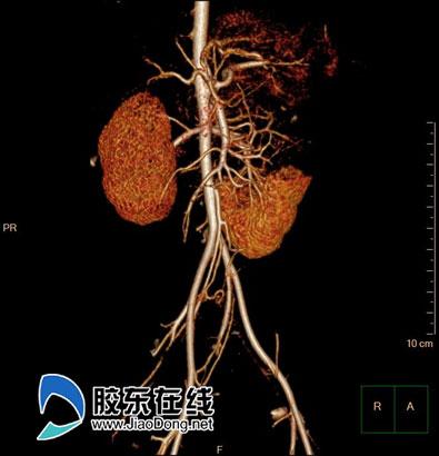 增强ct所见病变肾脏复杂血管关系