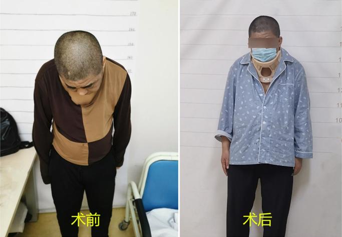 患者术前术后颈椎情况对比:术前患者无法平视,术后患者可自如平视